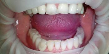 Протезирование съемным протезом на ацеталовом базисе фото после лечения