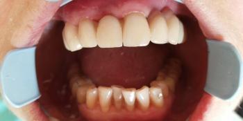 Имплантация зубов с протезированием несъемным керамическим протезом фото после лечения
