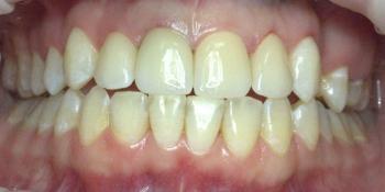Коронки из диоксида циркония на центральные зубы фото после лечения