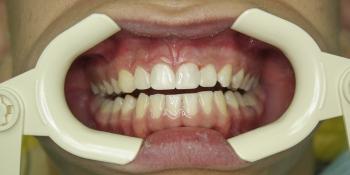 Лечение глубокого кариеса зубов, художественная реставрация фото после лечения