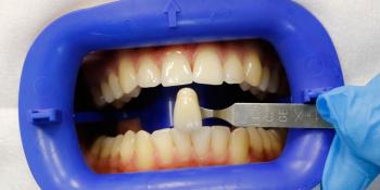Результат отбеливание зубов системой Zoom 3 фото до лечения