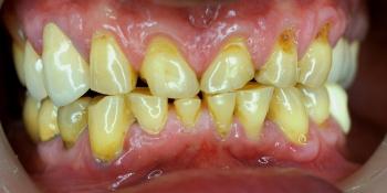 Пациент обратился с жалобами на эстетику зубов верхний и нижней челюсти фото до лечения
