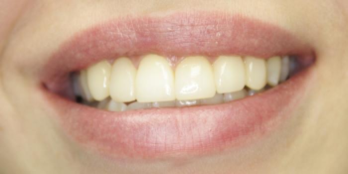 Художественная реставрация и восстановление зубов композитным материалом фото после лечения