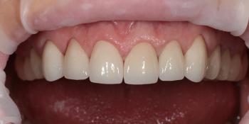 6 керамических коронок на основе диоксида циркония фото после лечения