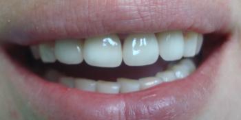 Преображение цвета и формы передних зубов (верхний ряд) фото после лечения