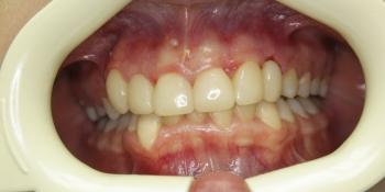 Трехэтапная реставрация зубов фото после лечения