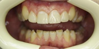 Реставрация зубов композитным материалом фото после лечения