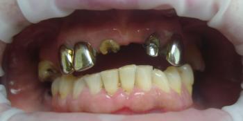 Восстановление отсутствующих зубов несъемным мостовидным протезом фото до лечения