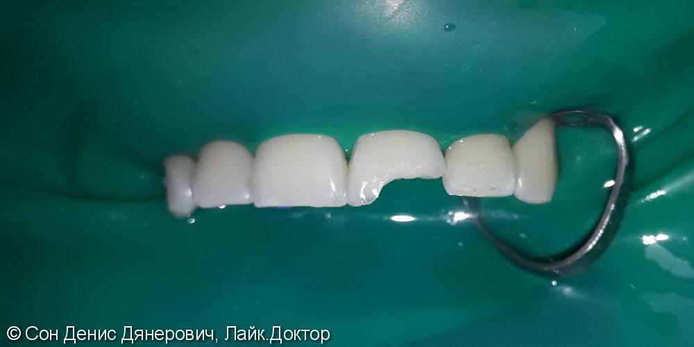 Эстетическая реставрация фронтального зуба светоотверждаемым материалом Filtek (США)