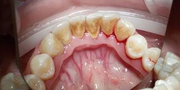 Clinpro - профессиональная чистка зубов фото до лечения