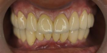 Пациент обратился с жалобами на эстетику зубов верхний и нижней челюсти фото после лечения