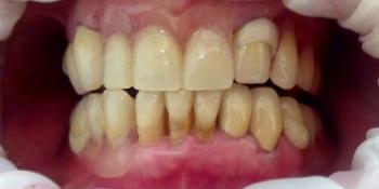Результат протезирования зубов верхней и нижней челюсти фото после лечения