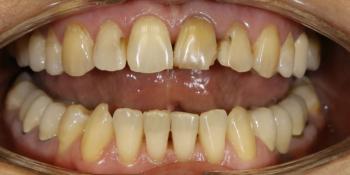 Преображение цвета и формы передних зубов фото до лечения