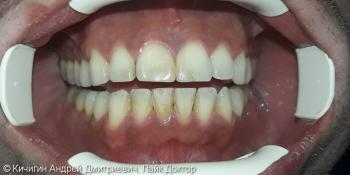 Результат удаления зубного налета фото до лечения