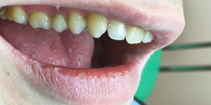 Культевая вкладка из золото-палладиевого сплава, коронка диоксид циркония фото после лечения