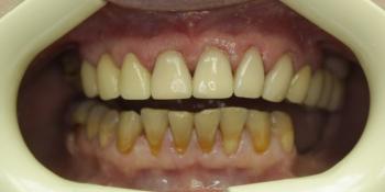 Реставрация передних зубов композитным материалом фото после лечения