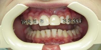Восстановление зуба на стекловолоконной конструкции фото после лечения