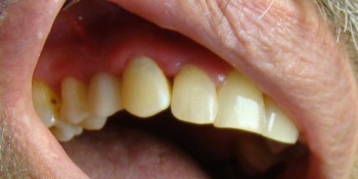 Установление стекловолоконного штифта с восстановлением зуба фото после лечения