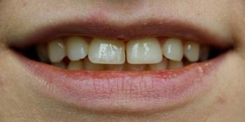 Керамические виниры с закрытием щели между зубами (диастема) фото до лечения