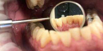 Результат профессиональной чистки зубов, до и после фото после лечения