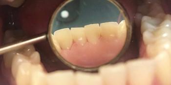 Результат проф чистки зубов ультразвуком фото после лечения