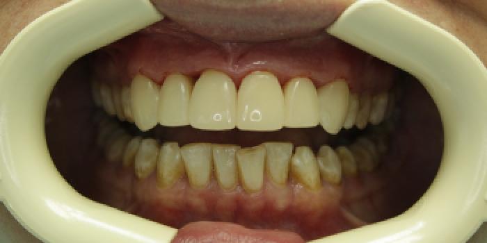 Восстановление зубов с установкой полупрямых композитных виниров фото после лечения