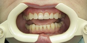 Реставрация зубов с применением композитных виниров фото после лечения
