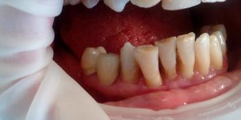 Протезирование металлокерамическими коронками премоляров фото после лечения