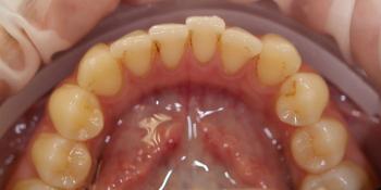 Процедура профессиональной гигиены полости рта Clinpro фото до лечения