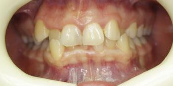 Трехэтапная реставрация зубов фото до лечения