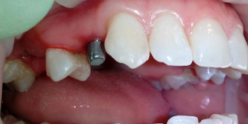 Протезирование зуба на верней челюсти справа на ранее установленном имплантанте фото до лечения