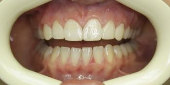 Устранение щели между передними зубами фото после лечения