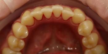 Процедура профессиональной гигиены полости рта Clinpro фото после лечения
