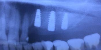 Установка трех имплантантов в области отсутствия зубов на верхней челюсти слева фото после лечения
