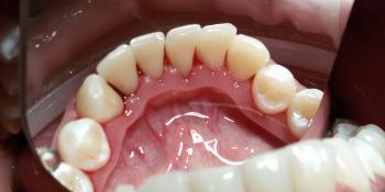Clinpro - профессиональная чистка зубов фото после лечения