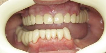 Установка виниров, реставрация зубов композитным материалом фото после лечения