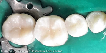 Глубокий кариес с переходом на контактную поверхность 4х зубов фото после лечения