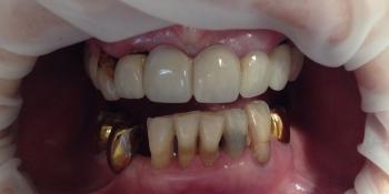 Протезирования зубов верней и нижней челюсти фото до лечения