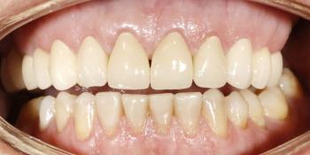 Восстановление верхних зубов керамическими коронками на основе диоксида циркония фото после лечения
