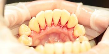 Жалобы на зубной камень, как следствие неприятный запах изо рта фото после лечения