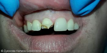 Художественная реставрация фронтальной поверхности зуба композитным материалом Estet X фото до лечения