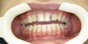 Лечение глубокого кариеса зубов, художественная реставрация фото до лечения