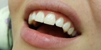 Неинвазивная реставрация скола переднего зуба фото после лечения