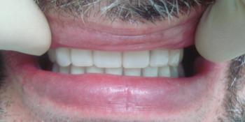 Восстановление зубов на верхней и нижней челюсти (полная адентия - отсутвуют все зубы) фото после лечения