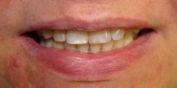 Восстановление центрального резца на верхней челюсти при помощи мк коронкой на импланте фото после лечения