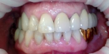 Замена металлокерамического мостовидного протеза фото после лечения