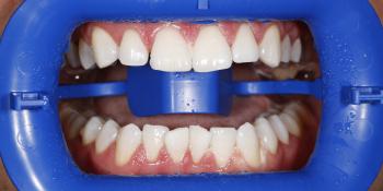 Проведена процедура отбеливания зубов Zoom 3 фото после лечения
