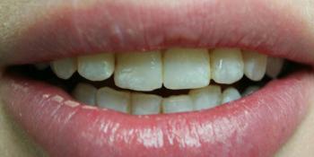 Преображение цвета и формы передних зубов (верхний и нижний ряд) фото до лечения
