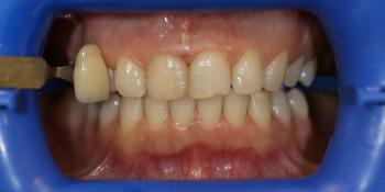 Результат отбеливания зубов системой ZOOM 3 фото до лечения