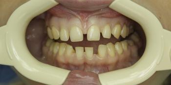 Устранение большой щели между зубами фото до лечения